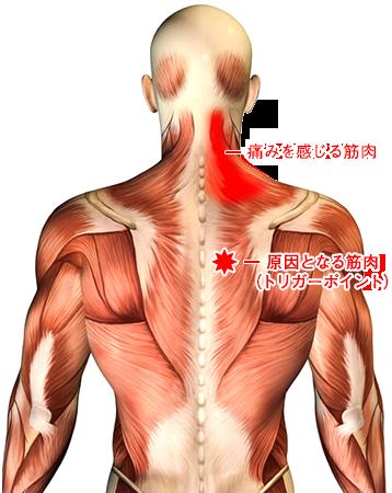 痛みの原因を見つけて改善するトリガーポイント治療